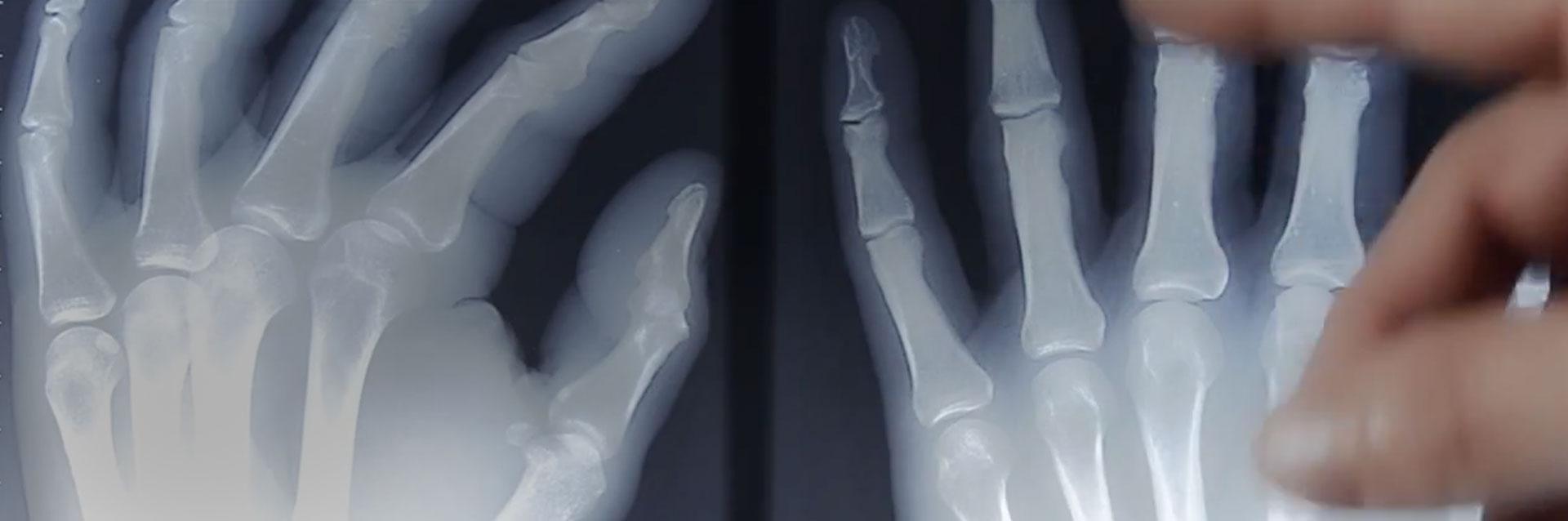 Handchirugen